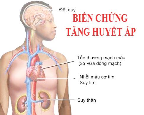 Các dấu hiệu cảnh báo biến cố tim mạch: Đau thắt ngực – Nhồi máu cơ tim và  tai biến mạch…